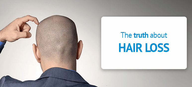 Hair loss myths and remedies